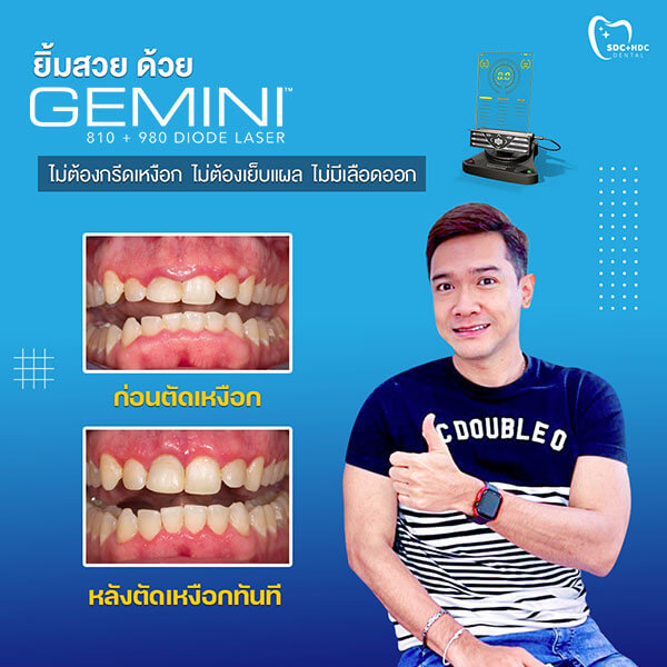 Gemini Laser Happy Dental Clinic2