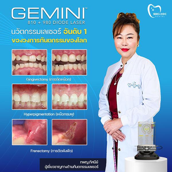 Gemini Laser Happy Dental Clinic